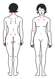fibromyalgie pijn tenderpoints